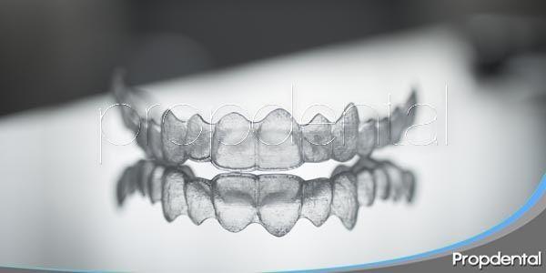Técnicas de Ortodoncia: Invisalign Express