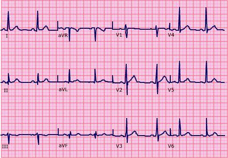 An essentially normal ECG