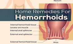 Natural home remedies for hemorrhoids show 39 effective treatments to get relief quickly and naturally.