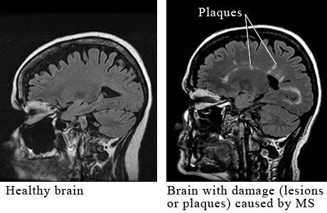 A healthy brain compared to one with Multiple Sclerosis. I wish I could get my MRI's to uplooad. My first scat was covered in lesions, but it's getting better. :)