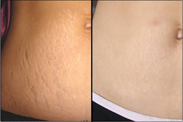 Stretch Marks and Cures: The stretch marks start as red patches and slowly as they fade away, they becomes white in color. Then, it is easy to camouflage them but it is very difficult to get rid of them.