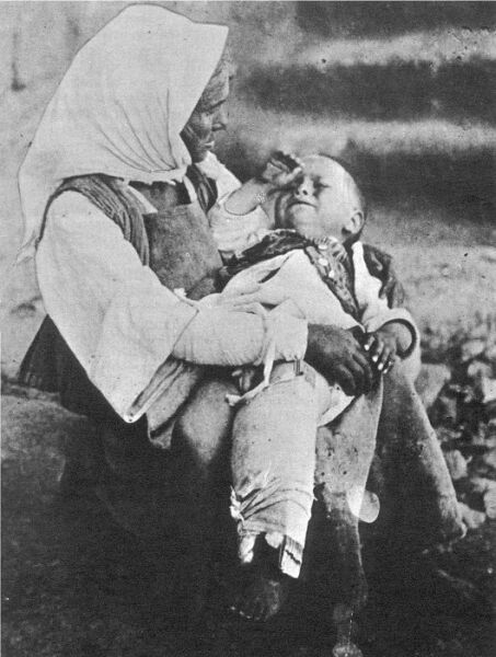 Hellenic refugees. A woman a small child, who probably had a broken leg.