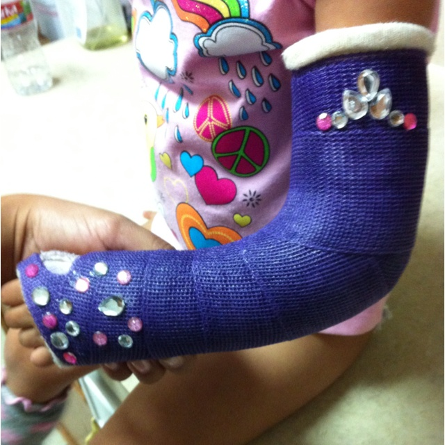 Decorate arm cast.. Arm cast bling for my princess..    just because i'm a grownup doesnt mean it's not allowed...right?