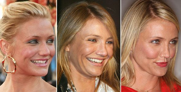 nose plastic surgery | Cameron Diaz Before After Nose Job Plastic Surgery