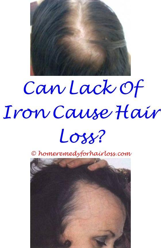 hair loss from front side of head - hair loss in breastfeeding.dog has hair loss pitbull hair loss patches itchy flaky scalp hair loss 7990346828