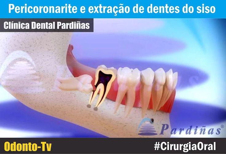 CIRURGIA ORAL: Pericoronarite e extração de dentes do siso | Odonto-Tv