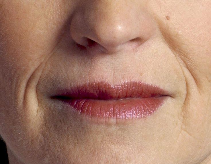 Но, так как убрать морщины вокруг губ в возрасте после 45 другими способами практически невозможно, приходится избавляться от них при помощи хирурга.