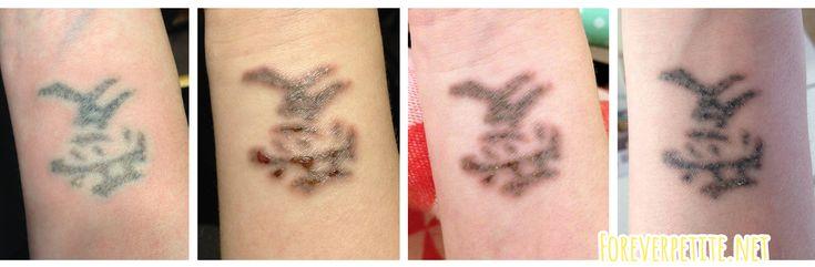 Tattoo verwijderen, sessie 3