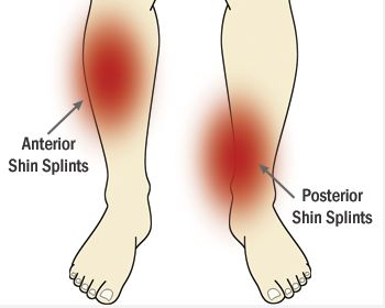 Relief for Shin Splints - Rehab Training.....I have GOT to try this. My shins always bother me.