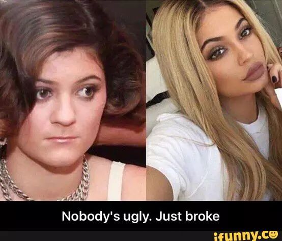 Kylie Jenner claims she didn't have plastic surgery. You be the judge!