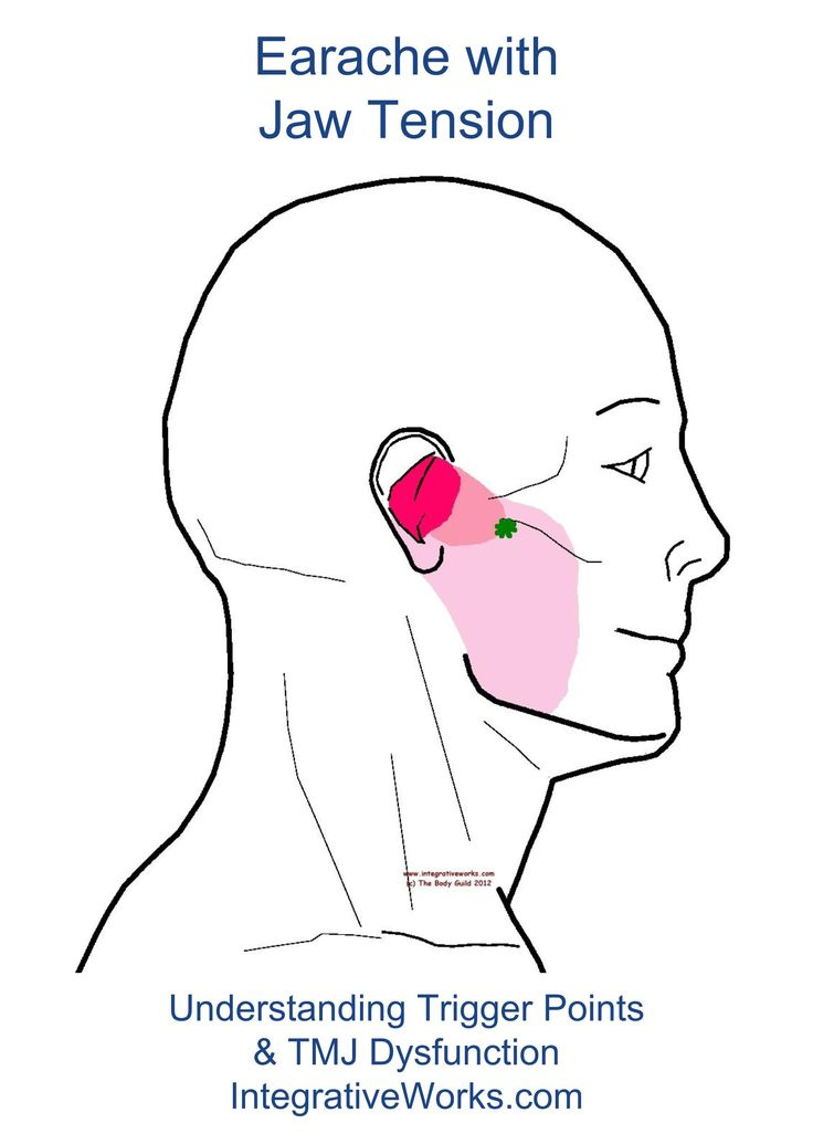 There are several trigger points that create pain in the ear. neuromuscular assessment can help to pinpoint the right one. This referral point of trigger point focuses in the ear and spread through…