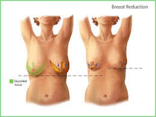 We offer breast reduction, breast lift surgery, in Delhi.Breast reduction is also called as reduction mammoplasty. Available best Breast reduction surgery in Delhi.  We offer best cost/price on breast reduction surgery in Delhi. We also offer low cost breast reduction surgery at time to time.