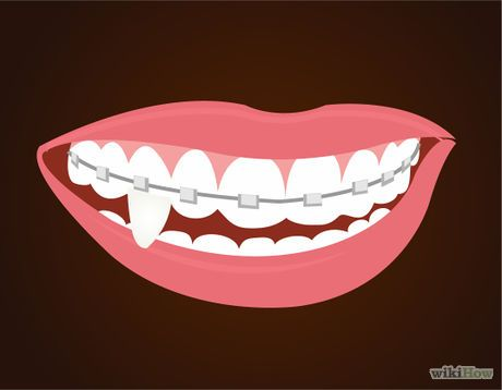 Make Vampire Fangs if You Have Braces Step 5.jpg