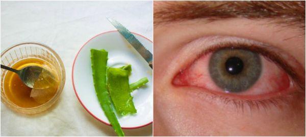 ВОССТАНОВИТЬ ЗРЕНИЕ ПРОСТО: НАРОДНЫЙ РЕЦЕПТ, КОТОРЫЙ БУКВАЛЬНО СПАСАЕТ ГЛАЗА! Алоэ — настоящее спасение для тех, кто страдает отпроблем со  зрением. Поделимся рецептом чудесного лекарства ссоком алоэ. Это средство — настоящая витаминная бомба для глаз! Может успешно применять…