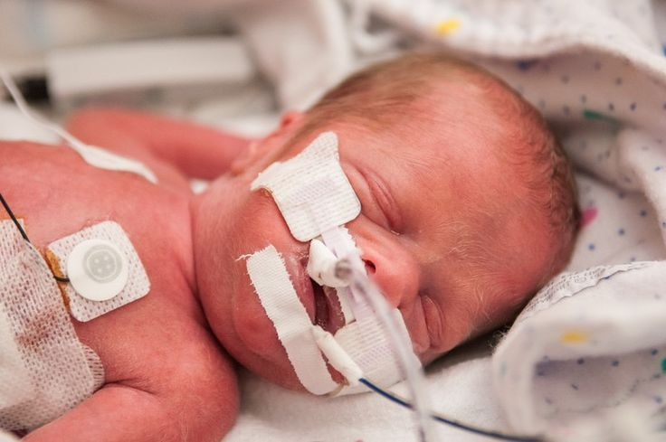 Life lessons from a preemie