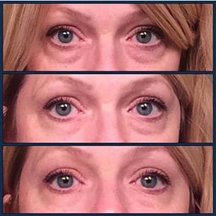 Before/After photos using Instantly Ageless lifting the eyes, removing the bags, smoothing out the wrinkles http://www.youthfulyouagain.jeunesseglobal.com/products.aspx?p=INSTANTLY_AGELESS