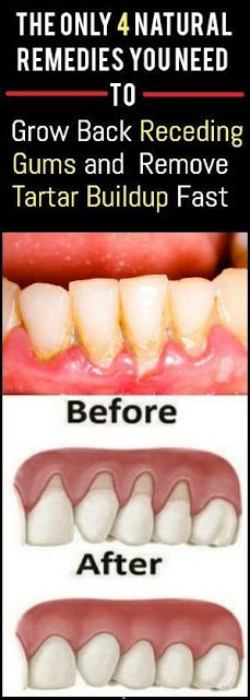 The Only 4 Natural Remedies You Need To Grow Back Receding Gums and Remove Tartar Buildup Fast