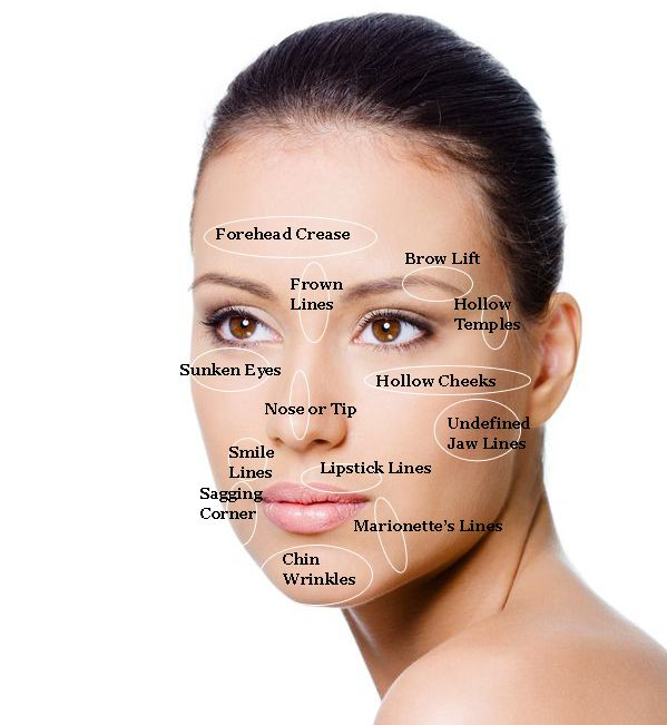 87 best freeze the hands of time images on pinterest botox fillers great illustration of the facial areas that can be treated with botox and fillers like solutioingenieria Choice Image
