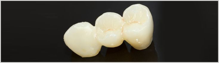 #PorcelainCrowns & Bridges:A porcelain crown can restore a single damaged tooth back to its original form and function.