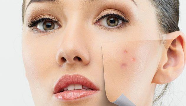 #acne #acnespots #skin #health #beauty #trend #fashion #skincare #healthcare #arganoil #arganrain