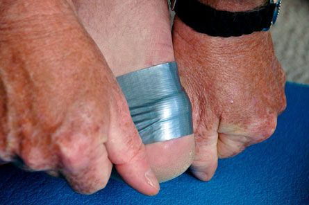 Use the duct tape to deal with blisters.