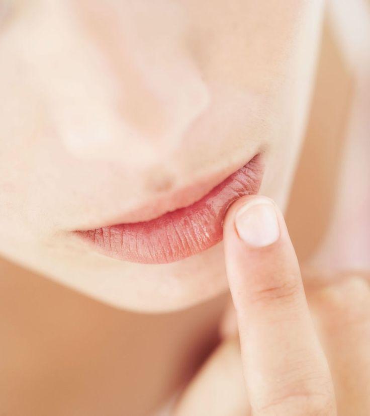 Labbra screpolate: 5 rimedi naturali fai-da-te