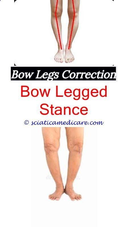 fb85986622 Bow Legs Correction - bow knees can yoga fix bow legs - flat feet knock  knees
