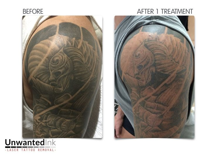 104 best laser tattoo removal sydney unwanted ink tattoo for Tattoo turned black after laser