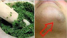 Débarrassez-vous définitivement des poils sur le visage et le menton en seulement 30 minutes !