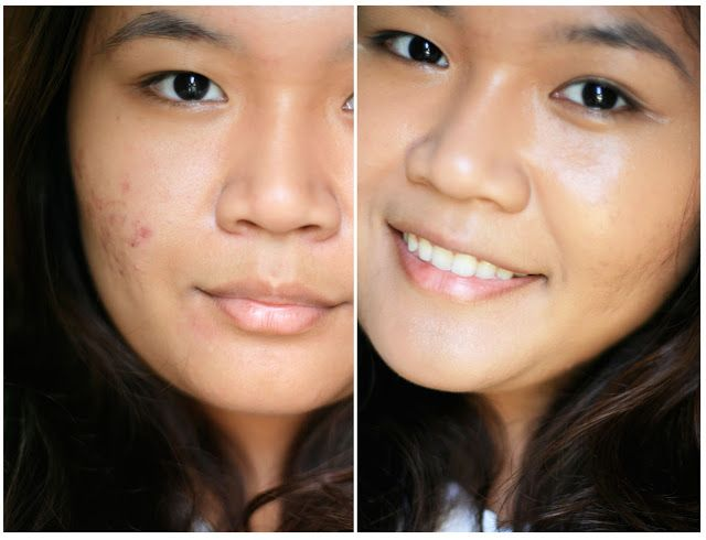 dating acne scars