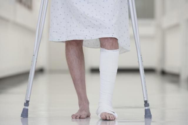 Fusing the Ankle Joint as an Option for Arthritis