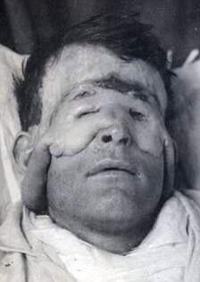 Mesmerised by facial reconstruction pioneered by Harold Gillies in WWI. http://gilliesarchives.org.uk/ Many drawn by Tonks