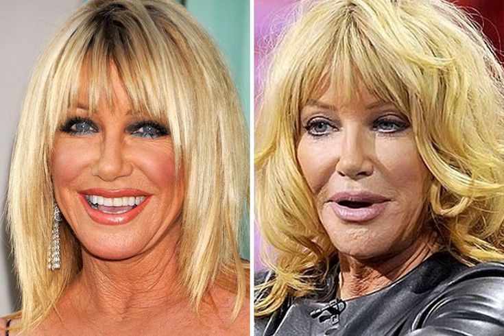 Suzanne Somers Now At Almost 70 Years Old Somers