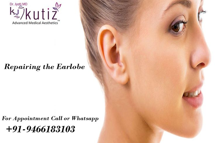 Shape of the ear also contributes to ones facial appearance. Yes it is possible. You can also get the best shape along with earlobe repair. To know more get in touch with us at +91-9466183103.