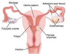 damaged fallopian tube  #damagedtube #blockedtube #fallopiantubes #adhesions #pcos #polyps #ectopicpregnacy #tubalpregnancy #pregnancyloss