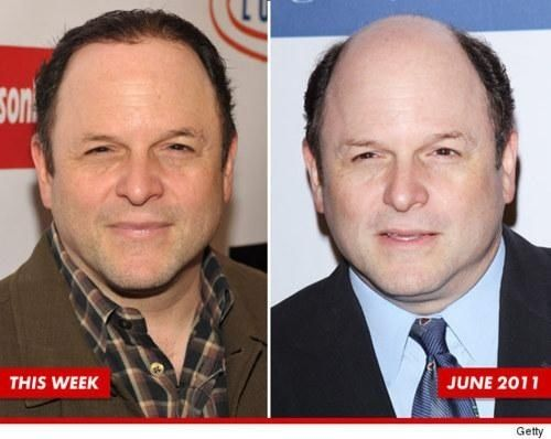 Because Jason Alexander has hair now | 45 Reasons Why We Can't Have Nice Things