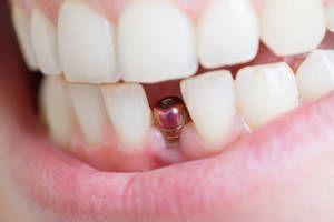Eine Entzündung rund um ein Implantat (Periimplantitis) ist schlechter zu behandeln als eine Entzündung am natürlichen Zahn