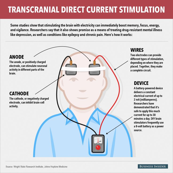 17 best images about tdcs therapy your brain and transcranial direct current stimulation