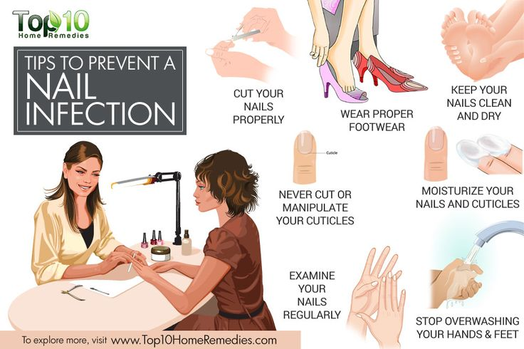 tips to prevent nail infection