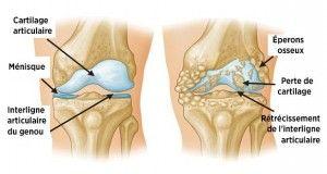 Voici un produit miracle pour dire adieu aux douleurs articulaires et du genou en moins d'une semaine !
