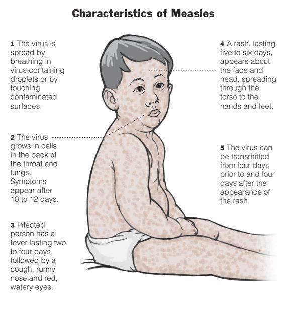 There's currently a spike in #measles cases in NYC and now's the best time to learn more about this contagious virus. Fever is one of the first symptoms to appear. Make sure to keep track of symptoms, take your temp, and visit your physician if necessary. #health  #pediatric