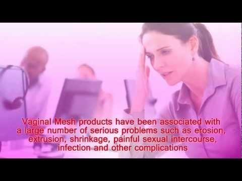 Transvaginal Mesh Attorney #Transvaginal_mesh_attoreny #Transvaginal_Mesh_Lawsuit #Transvaginal_Mesh_Lawyer
