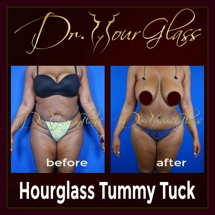 Notice how this lady achieved this almost perfect figure. She underwent an Hourglass Tummy Tuck procedure which involves liposuction to eliminate fat deposits and excess skin. It also involves fat transfer to the hips for an hourglass shape.