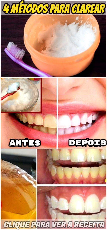 Tenha Dentes Brancos Como Nunca Usando Estes 4 Metodos Caseiros