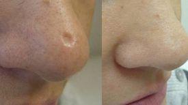Pour se débarrasser des cicatrices sur la peau, voici le TOP des remèdes naturels…