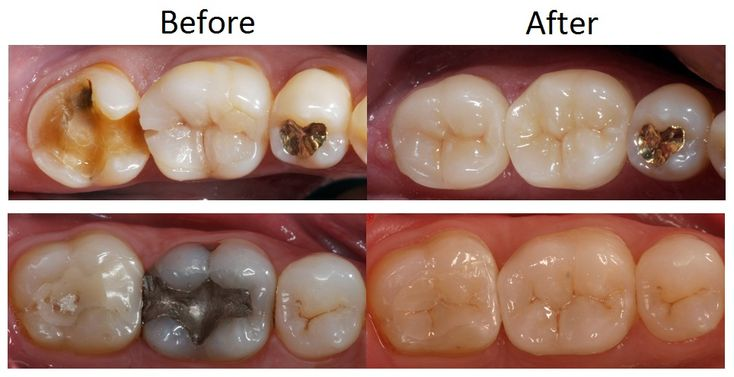 A Crown Is A Type Of Dental Restoration Which Completely