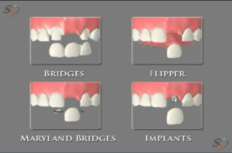 Options of a replacing missing tooth :- - Bridges  - Flipper  - Maryland Bridges  - Implants.