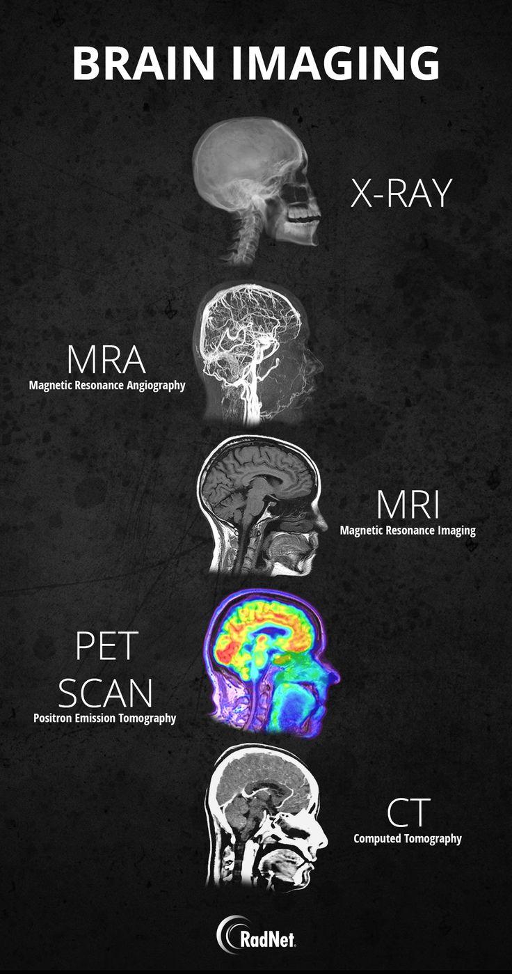 Home in 2020 Brain images, Medical anatomy, Nursing