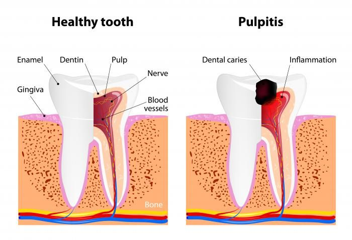 healthy tooth compared to one with dental caries