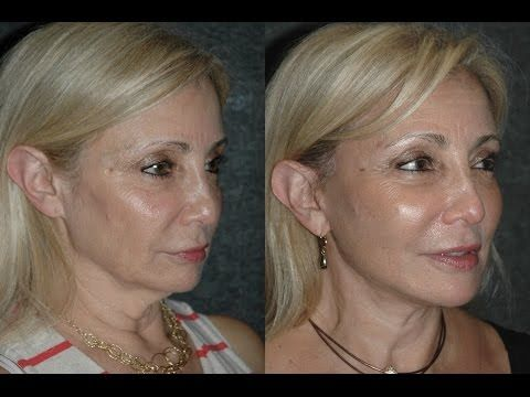 Local Anesthesia Neck Lift Before and After 59 Year Old with Turkey Neck and Jowls - To learn more about Dr Andrew Jacono and his facelift techniques visit http://www.newyorkfacialplasticsurger... or call his 5th Avenue NYC office at (212)570-2500 or his Great Neck Long Island Office at (516)773-4646